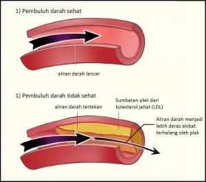 kolesterol2